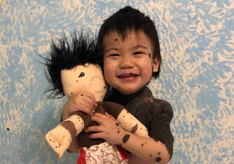 Child with a special doll with matching skin condition